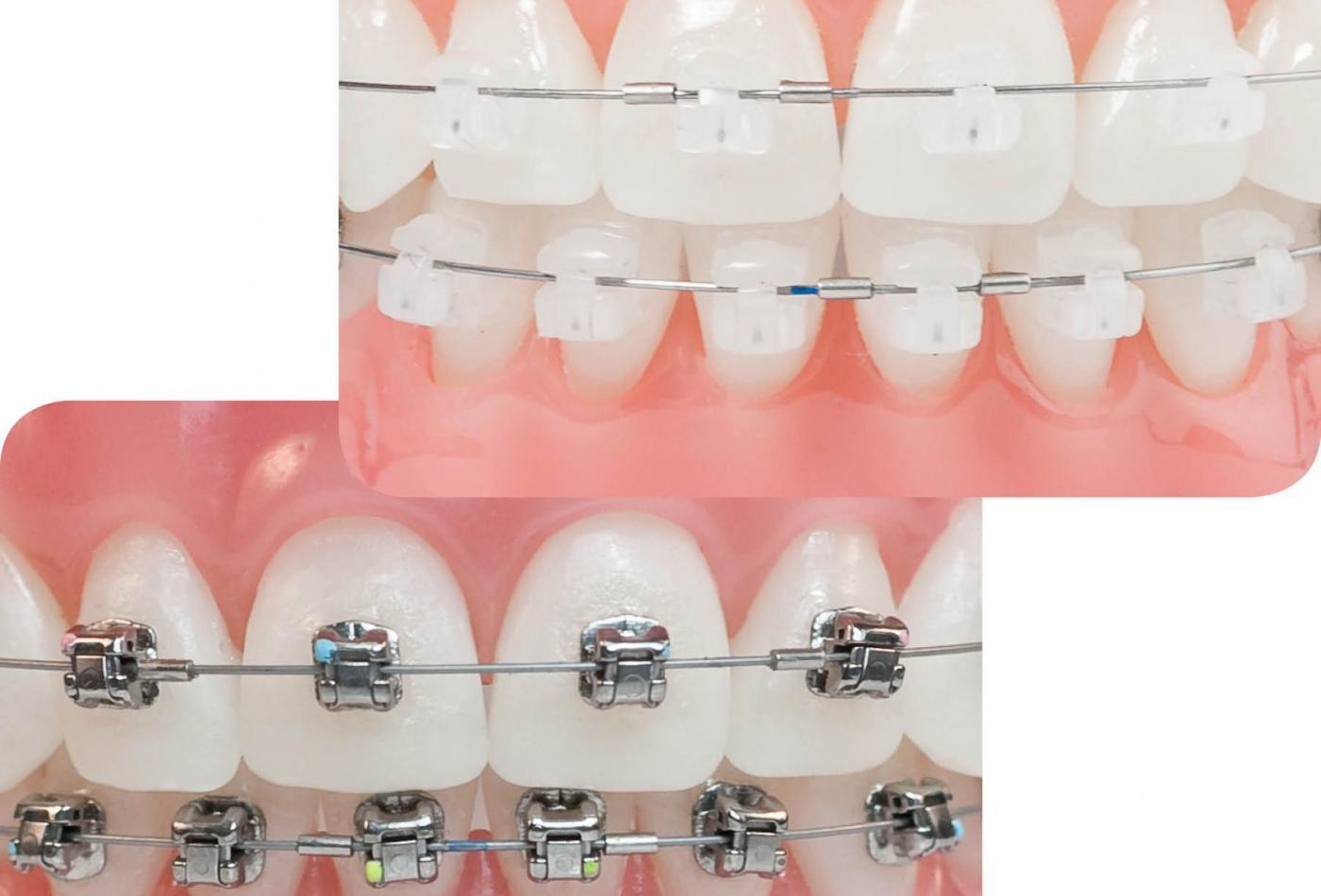 Niềng răng (Chỉnh nha) mắc cài