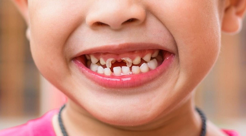 Tại sao các bé 3-4 tuổi lại có tỷ lệ sâu răng cao? nguyên nhân, hậu quả và cách phòng ngừa,chữa trị tình trạng sâu răng cho bé.
