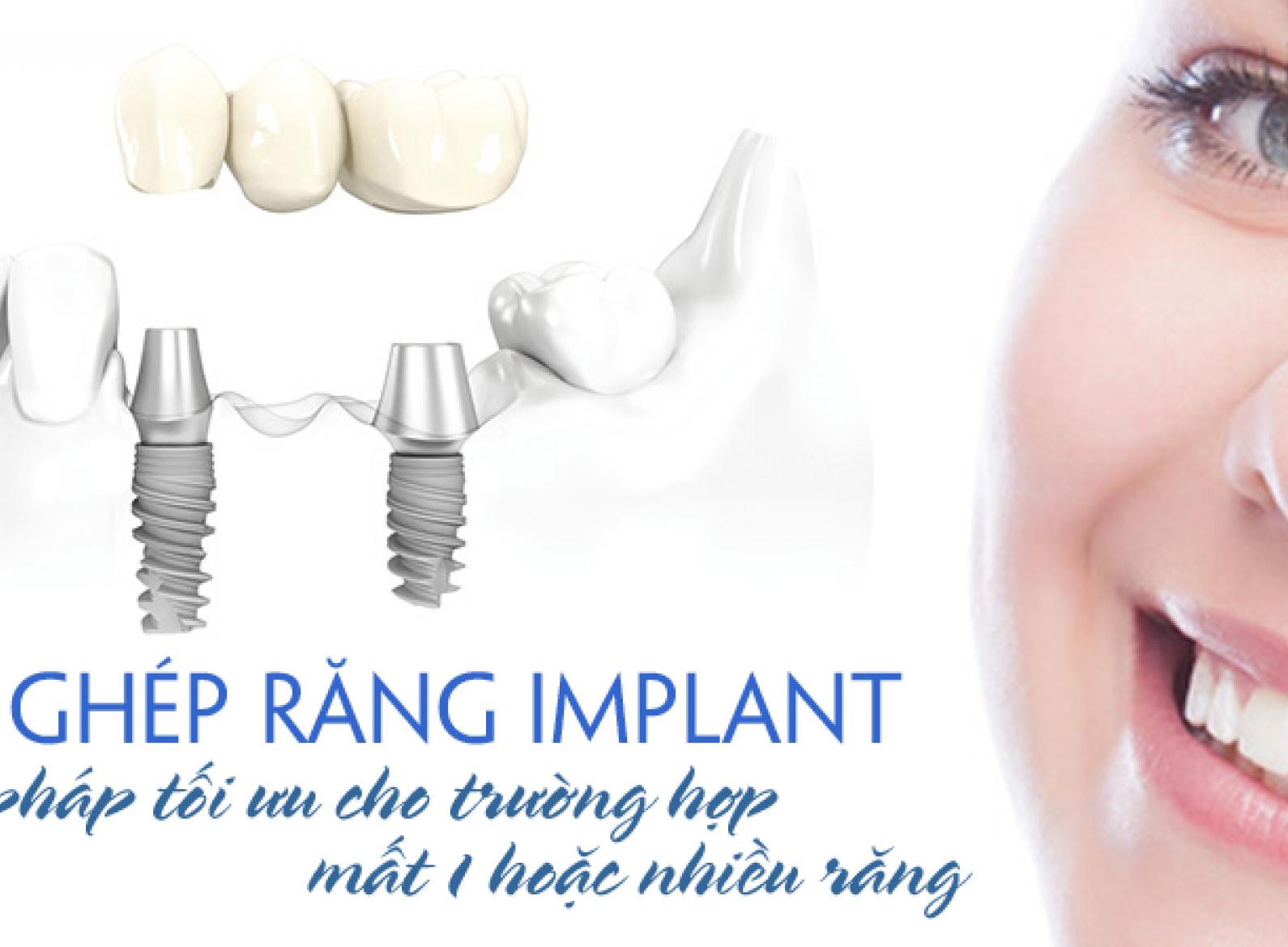 Cấy ghép Implant nha khoa