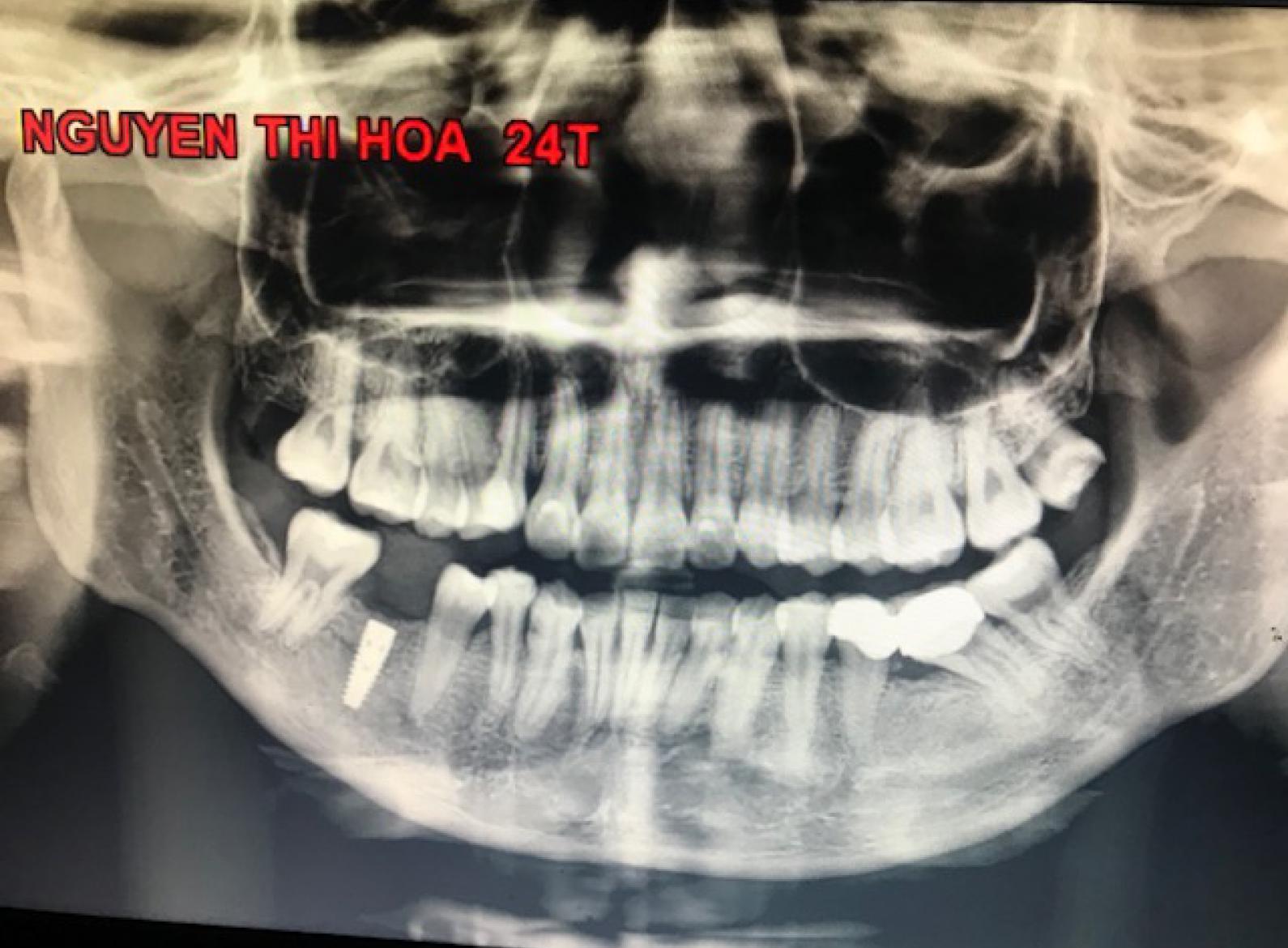 Cấy ghép nha khoa (Dental implant) tốt nhất
