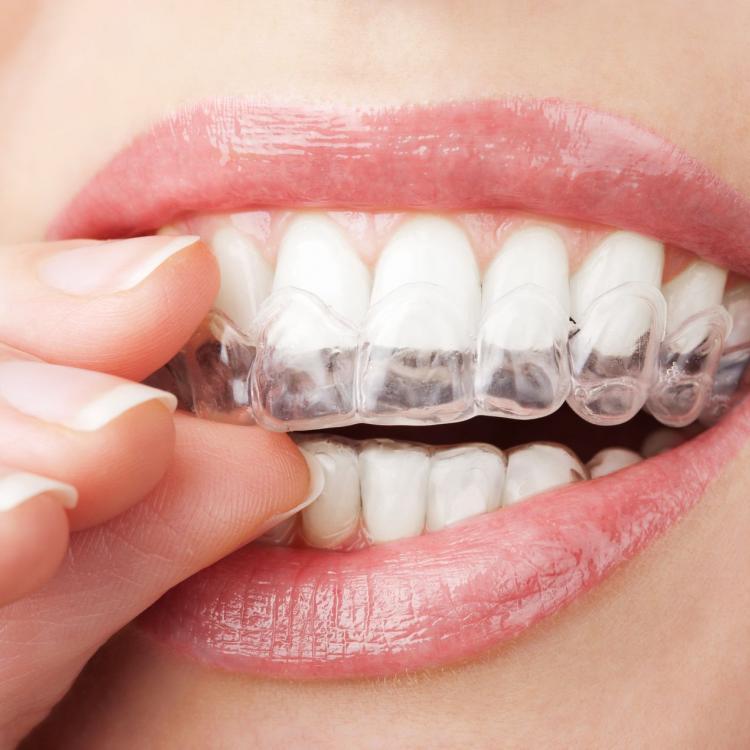 Niềng răng (Chỉnh nha) không mắc cài