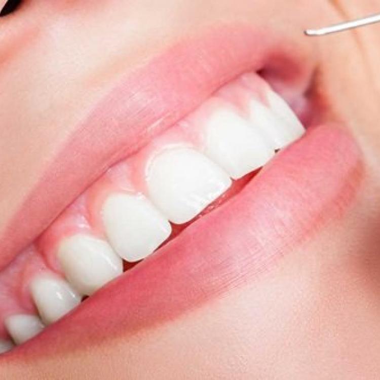Dịch vụ răng sứ thẩm mỹ ngày càng được nhiều người lựa chọn