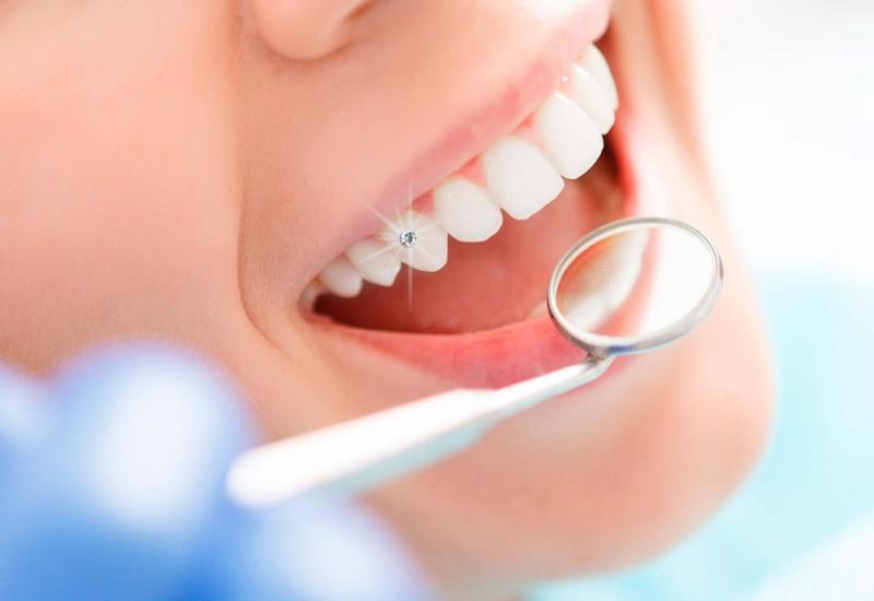 Đính đá trên răng có gây ê buốt không? Những lưu ý khi đính đá trên răng